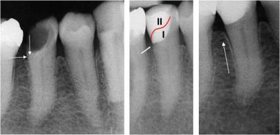 left periapical radiograph indicating that the floor of the cavity distally at tooth 45 is short of the bony crest center the situation immediately